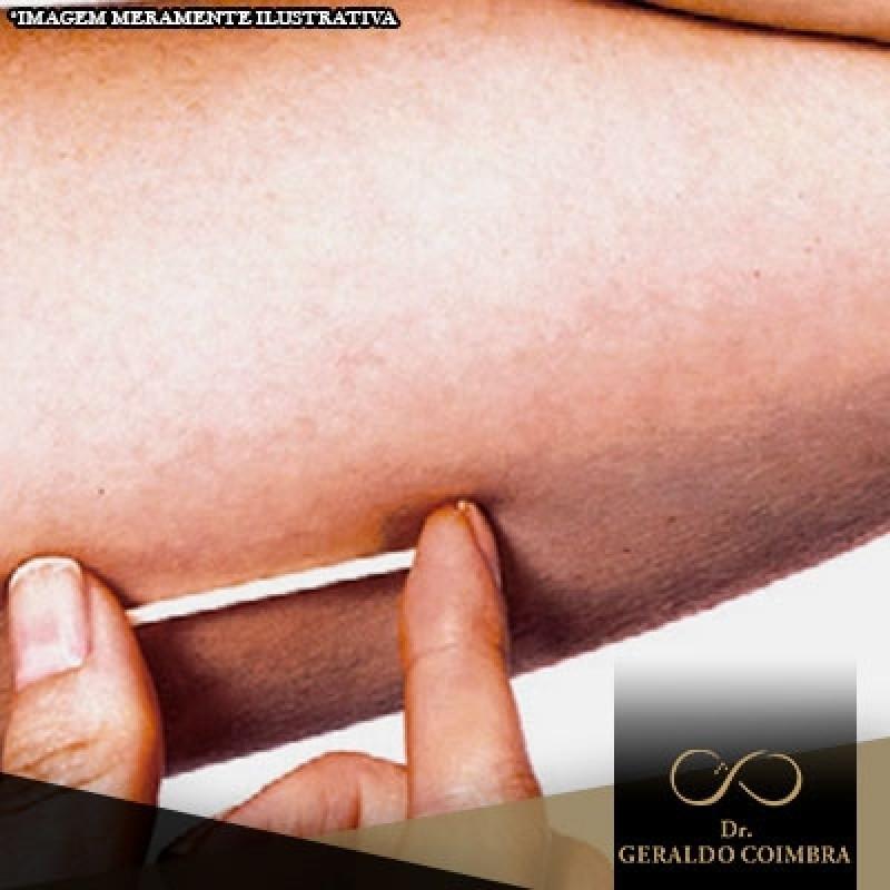 Chip da Beleza Anticoncepcional Vila Mariana - Chip da Beleza com Testosterona