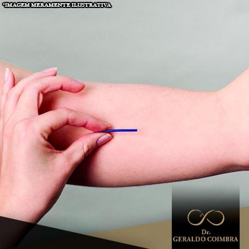 Chip da Beleza Hormonal Higienópolis - Chip da Beleza Contraceptivo