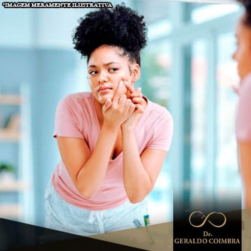 Médico Que Faz Tratamento Hormonal com Estrogênio Campo Belo - Tratamento Hormonal Acne Homem