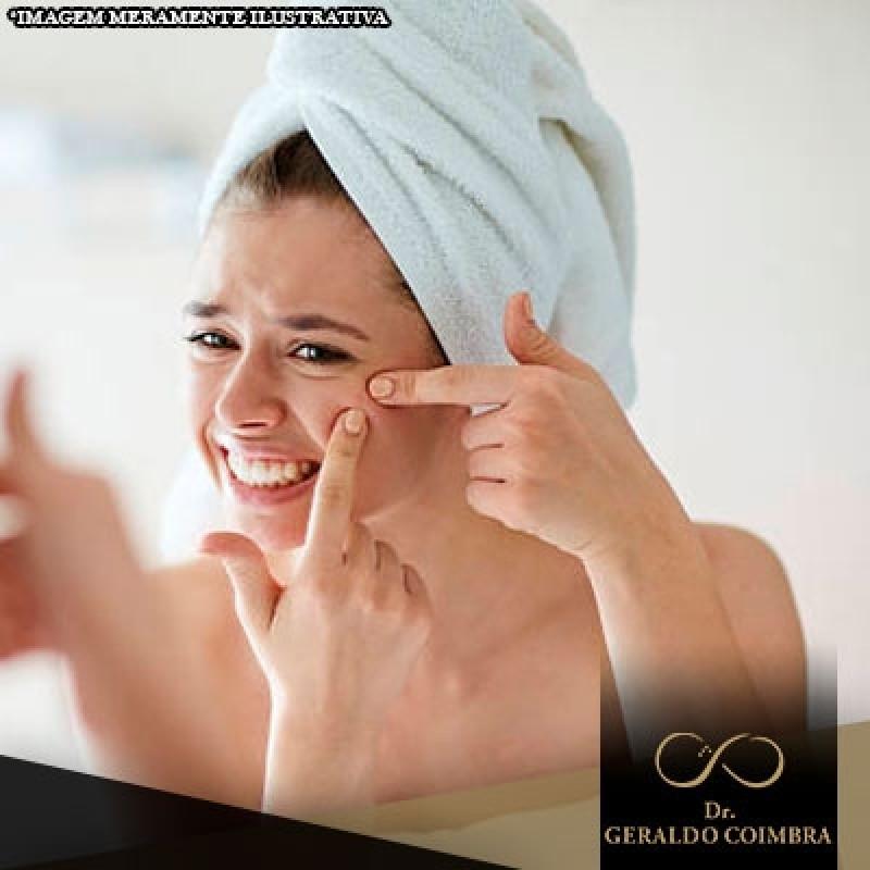 Onde Encontro Clínica para Tratamento Hormonal Acne Alto de Pinheiros - Clínica para Tratamento Hormonal de Testosterona
