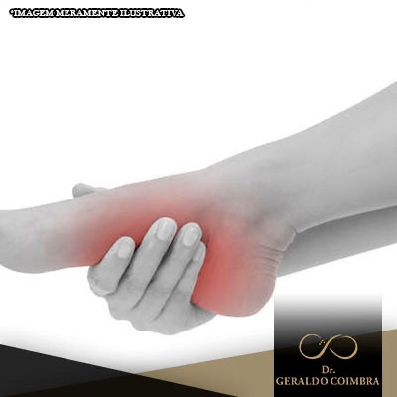 Onde Faço Tratamento para Dor na Articulação do Pé Higienópolis - Tratamento para Dor na Articulação do Pé