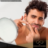 clínica para tratamento hormonal acne homem Brooklin