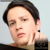 clínica para tratamento hormonal acne homem