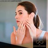 clínicas para tratamento hormonal acne Campo Belo