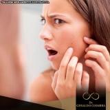 endereço da clínica para tratamento hormonal acne Vila Olímpia