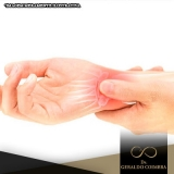 local para tratamento para dor na articulação do pulso Ibirapuera