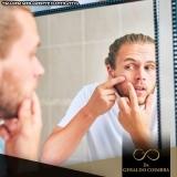 médico que faz tratamento hormonal acne homem Alto de Pinheiros