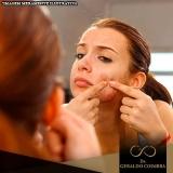 médico que faz tratamento hormonal acne Morumbi