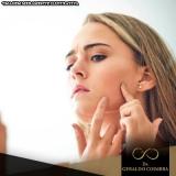 onde posso fazer tratamento hormonal acne Ibirapuera