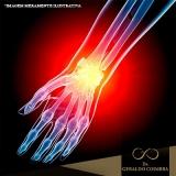 tratamento para dor na articulação do pulso