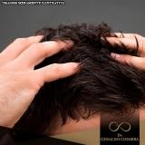tratamento capilar masculino
